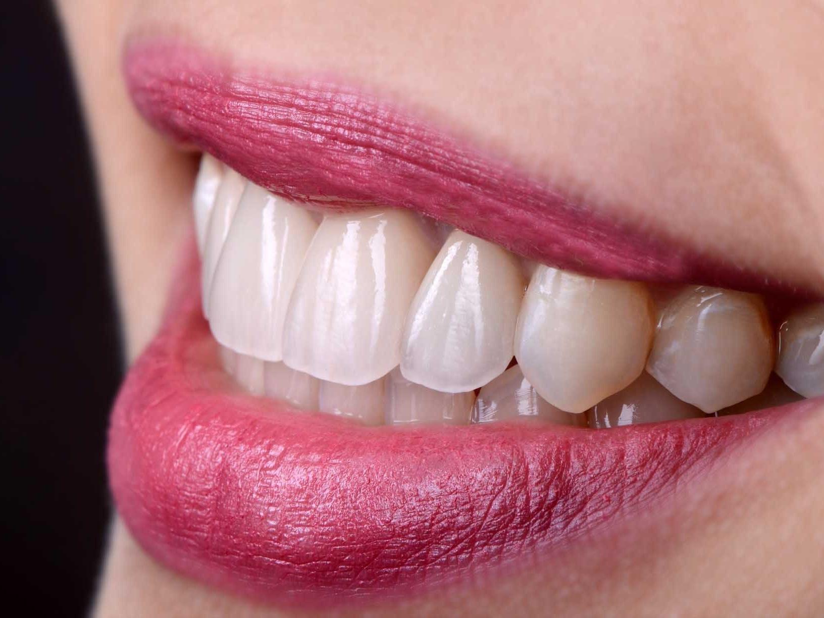 blanchiment des dents Lille