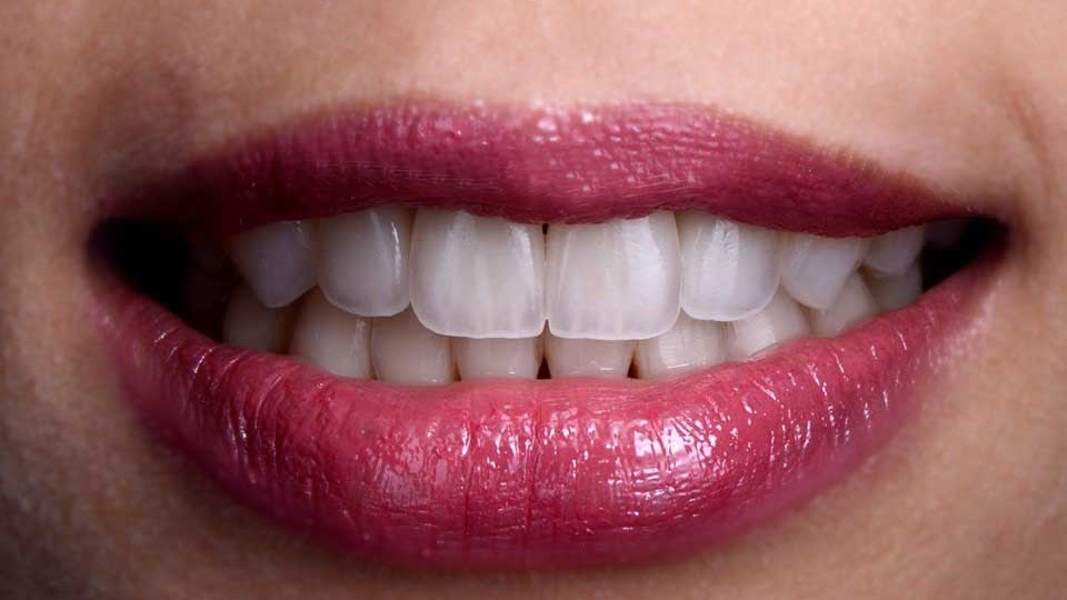 Esthétique dentaire Lille